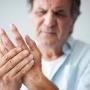 Ways to Manage Arthritis