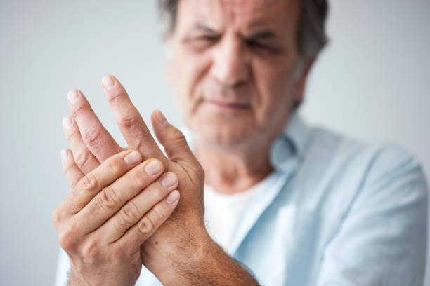 Ways to Manage Arthritis